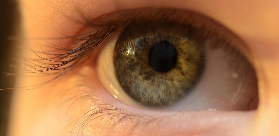 Ce înseamnă heterocromia? De ce unii oameni sau unele animale au ochii de culori diferite