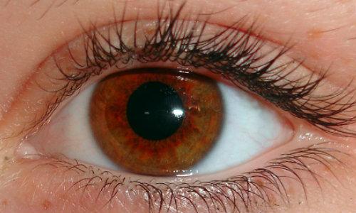 vederea ochiului drept s-a deteriorat)
