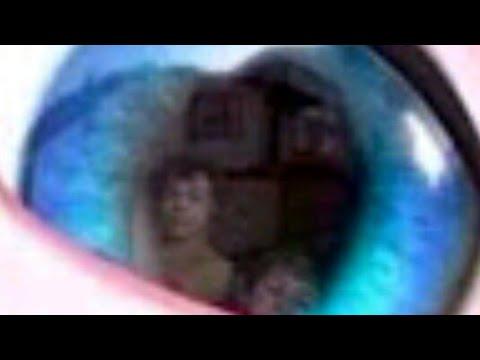 totul despre ochi și forumul viziunii