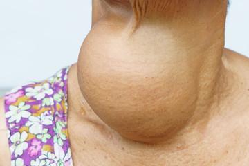 simptome hipertiroidism la femei