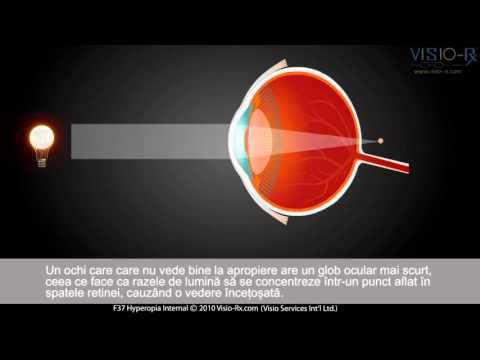 ce afectează scăderea vederii)