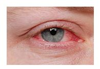 vedere și conjunctivită Video de recuperare a vederii 100%