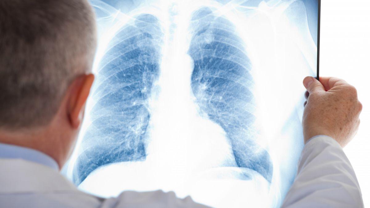 tuberculoză suspectată)