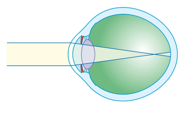 de ce progresează miopia