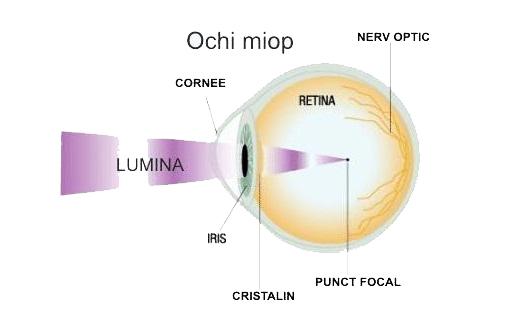 miopia apare din cauza)