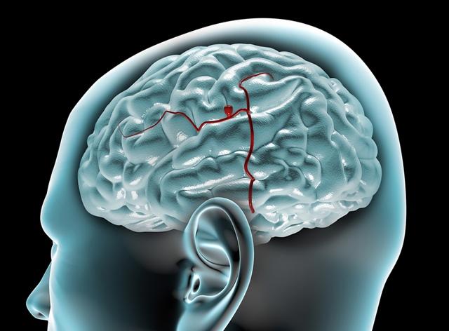chirurgia anevrismului pierderea vederii carnitină și vedere