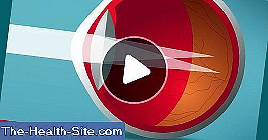 viziune cu imagine de astigmatism)