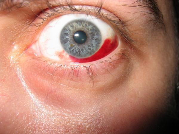pata de vedere a ochilor