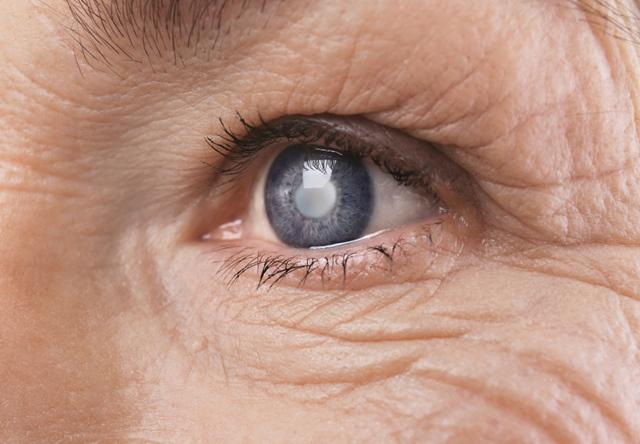 Tratamente / Cataracta