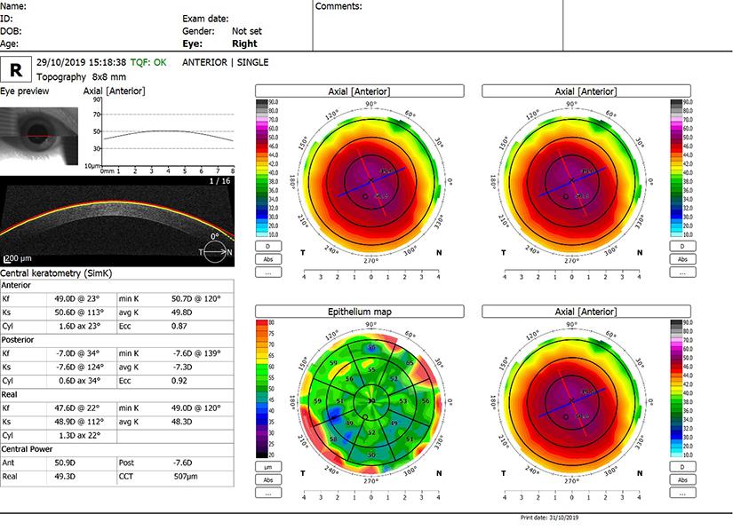 examinarea vederii aproape ochiul exercită miopie hipermetropie