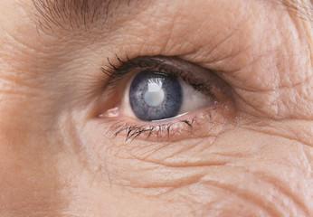 Acuitatea vizuală a cataractei cu d