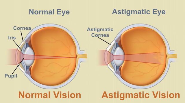 patologia congenitală și dobândită a vederii