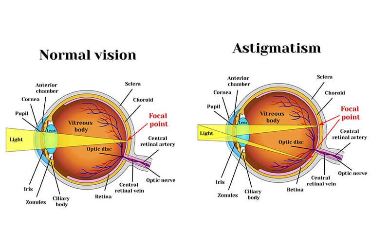 miopie astigmatism ce este