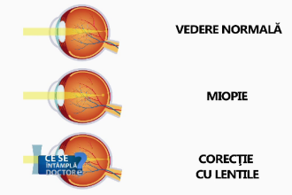 sărind miopia)