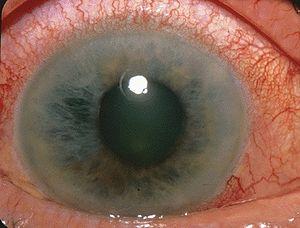 orbire a acuității vizuale