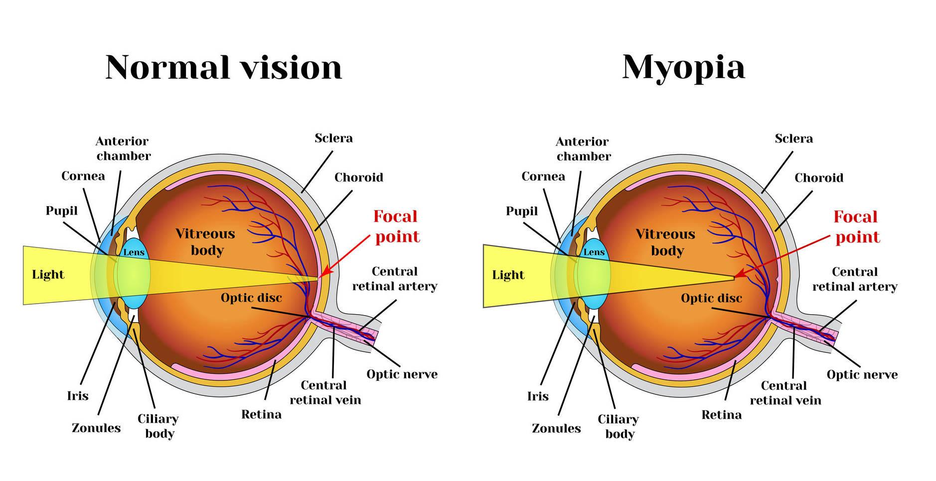 miopia restabilirii unui ochi