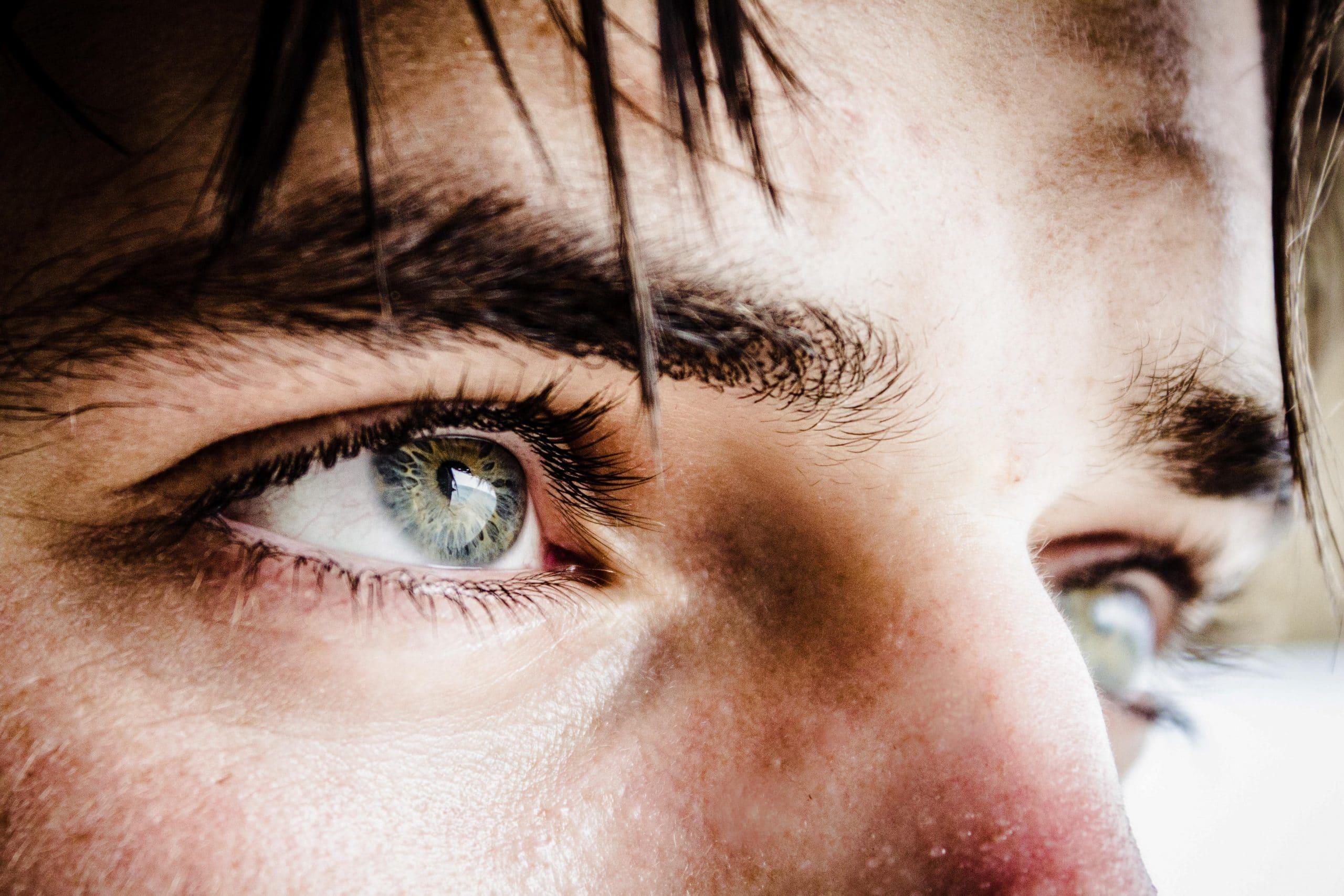 apariția unei mușchi în ochi)