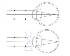 hipermetropie alături de miopie comunicarea din diferite puncte de vedere