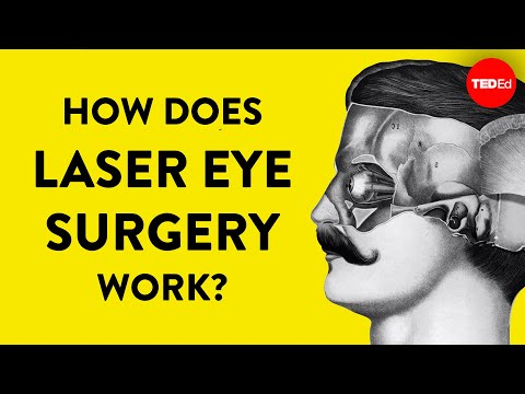 diagrame de exerciții de restaurare a vederii ochi și vedere video