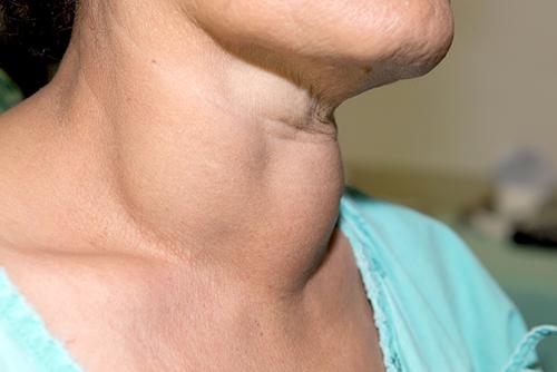 Probleme cu glanda tiroidă - cauze, simptome, tratament