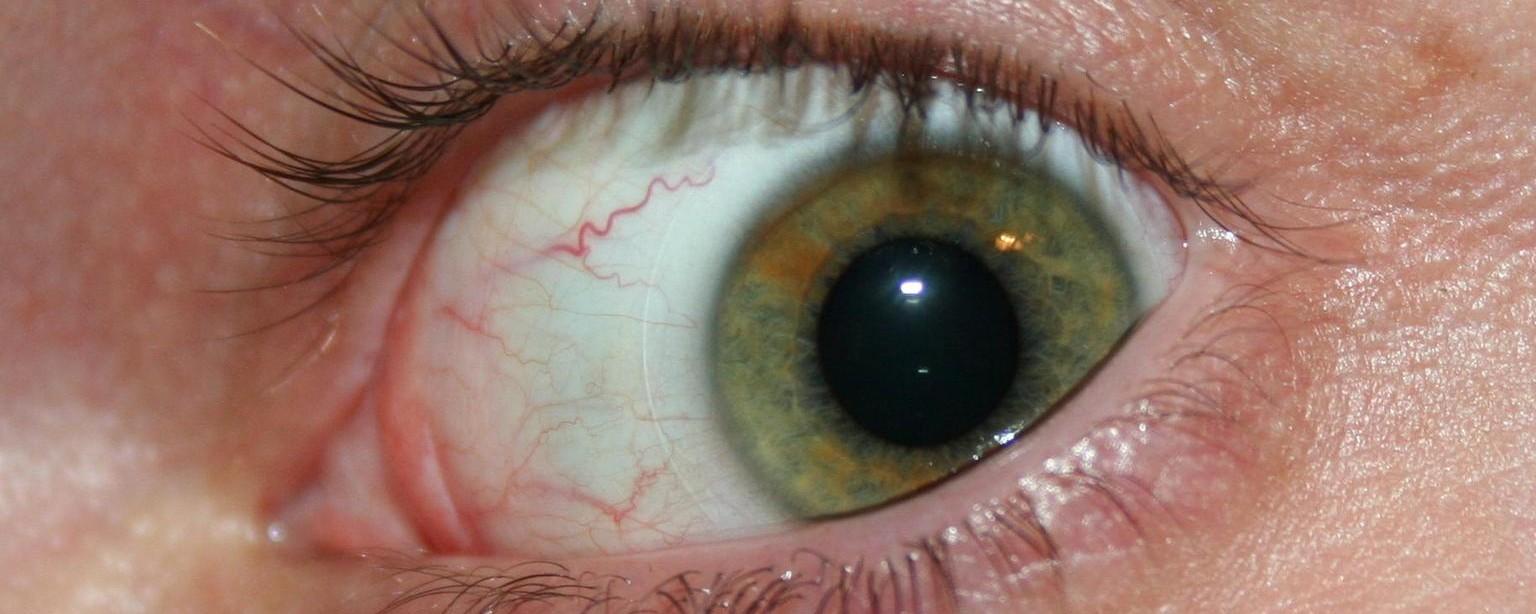 vedere pierdută temporar la un ochi