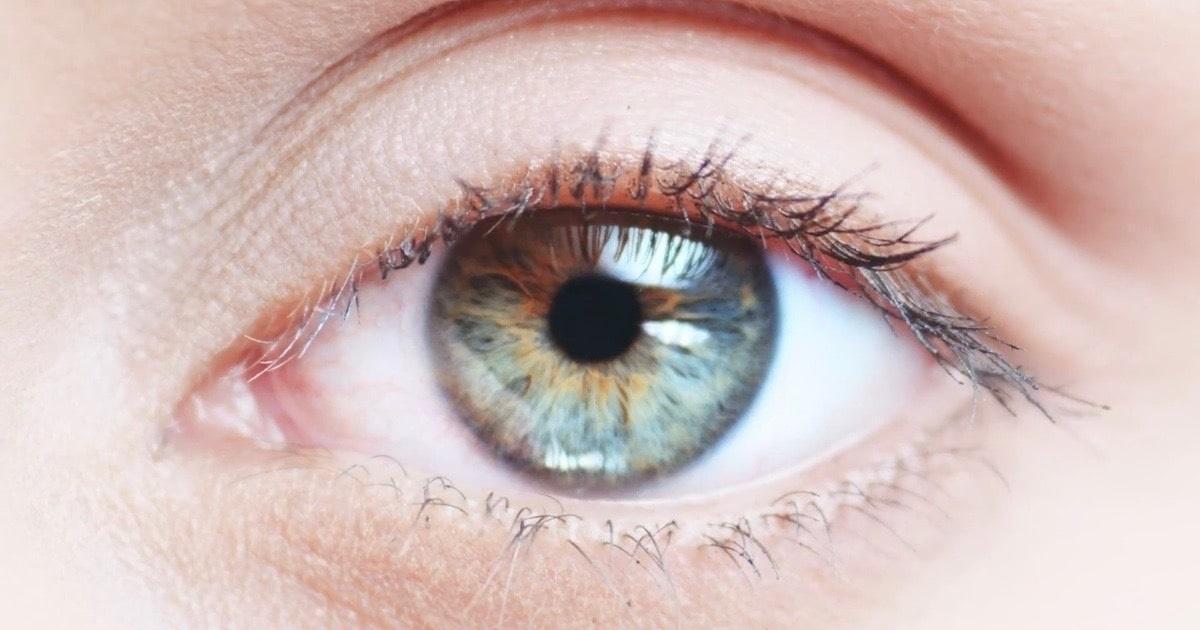 apariția unei mușchi în ochi hipotiroidism și vedere încețoșată