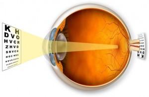 Acuitatea vizuală și gradul de miopie