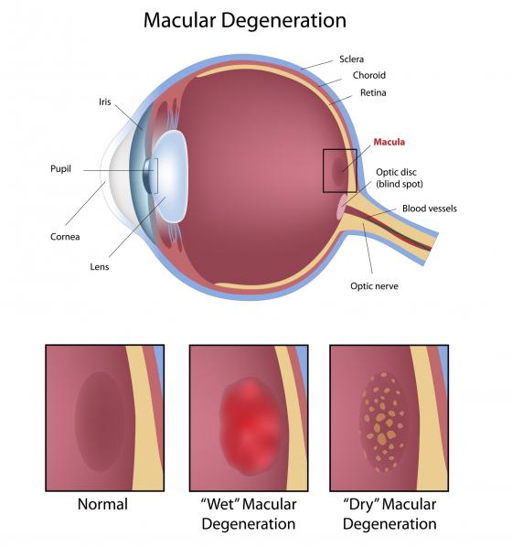 dacă vederea s-a deteriorat brusc