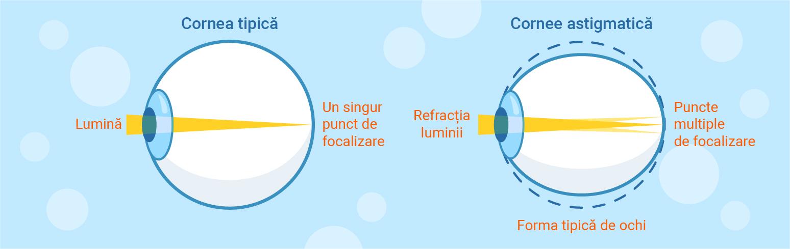 miopie medie cu astigmatism