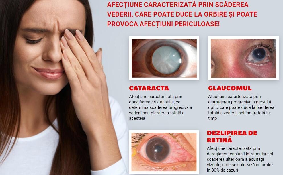 cataracta glaucom