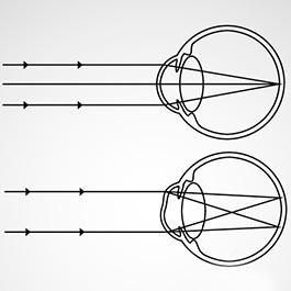 Puncte negre înaintea ochilor. Care sunt aceste pete, cauze și tratamentul defocalizării vederii