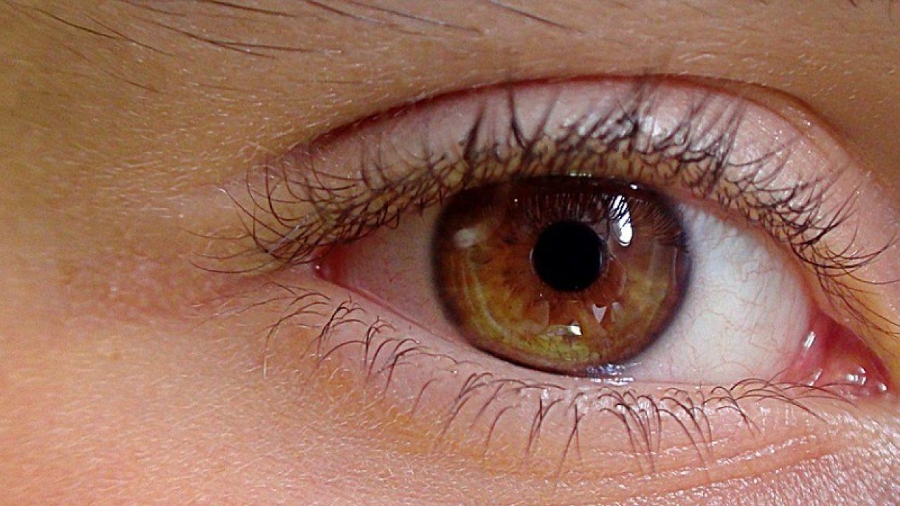 ce înseamnă dioptrii cu miopia