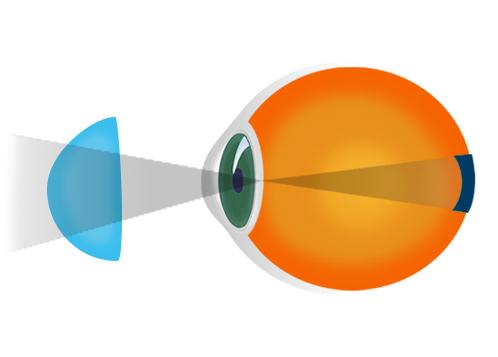 hipermetropie și miopie cum este tratată