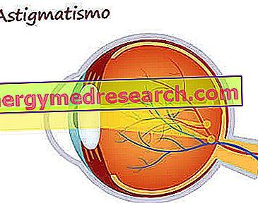 antrenament vizual pentru astigmatism