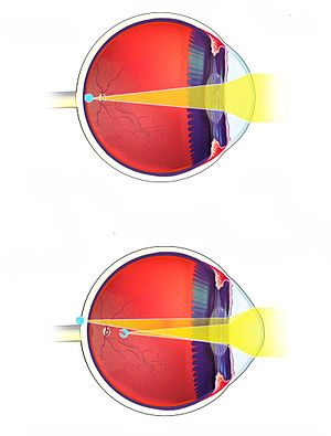 Boala ochilor miopie congenitală