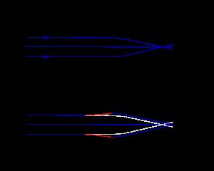 Miopia, de la A la Z
