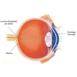 Medicină/Deficiența de vedere