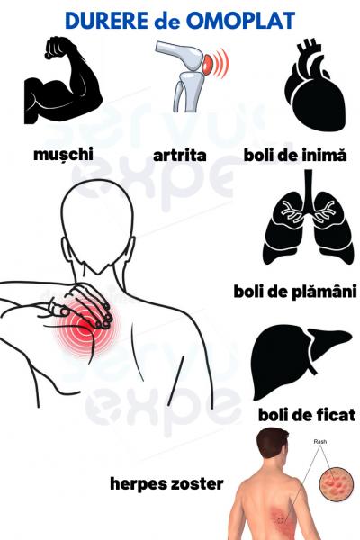 Decalogul inimii: Simptome nebagate in seama ale unui atac de cord
