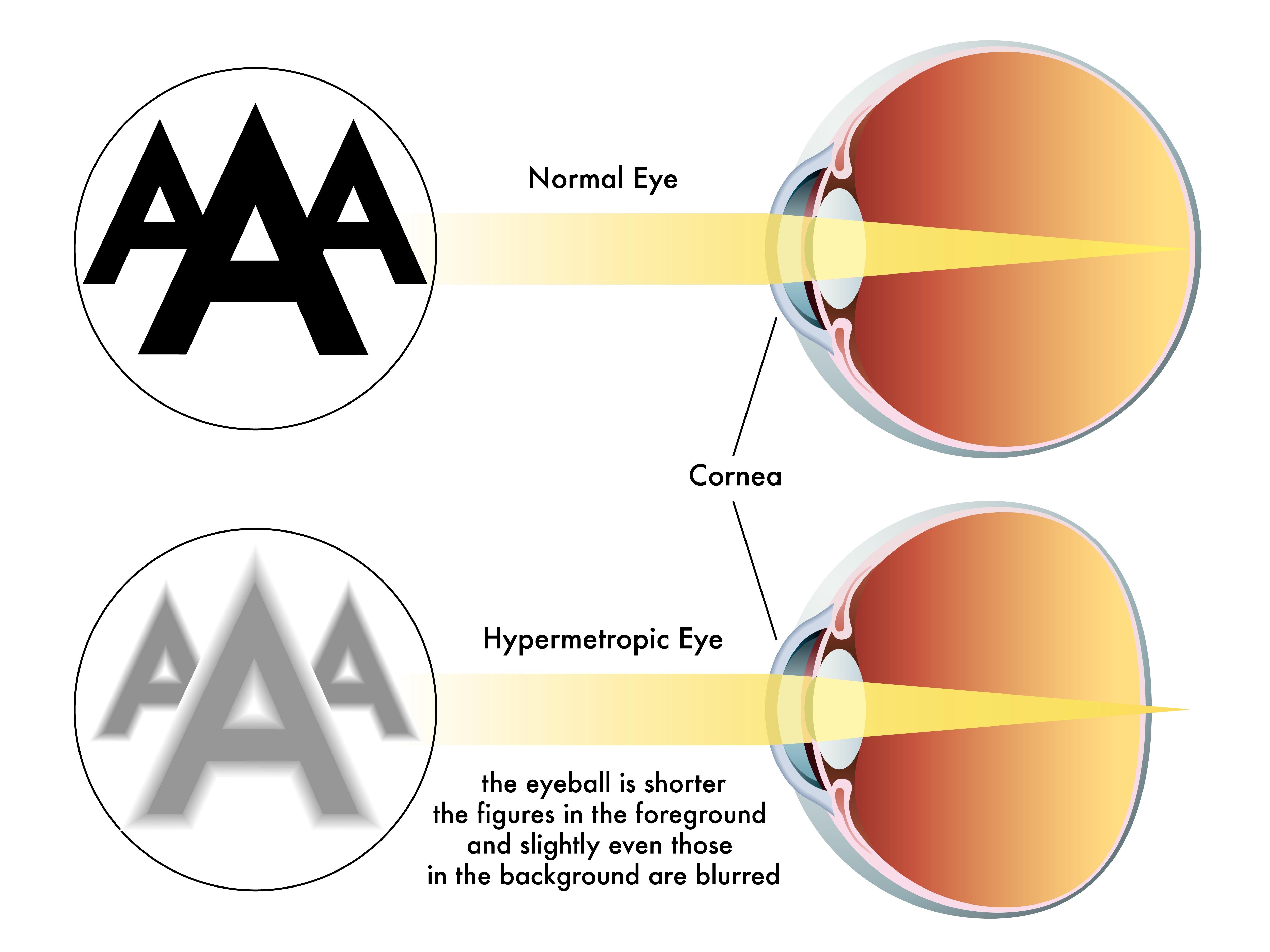 hipermetropia apare din cauza vedere în calamar