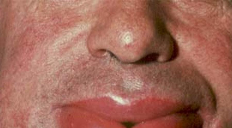 Alergia la penicilina