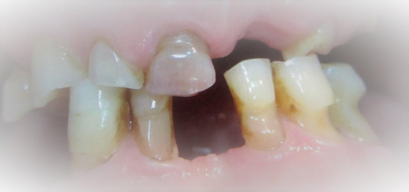 viziune cu durere de dinți în)