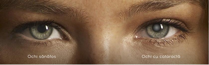 pupila dilatată și miopia