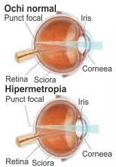 hipermetropie vindecată