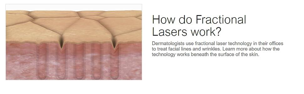 recenzii despre laser laser correction correction)