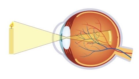 ochii miopiei sunt extinși