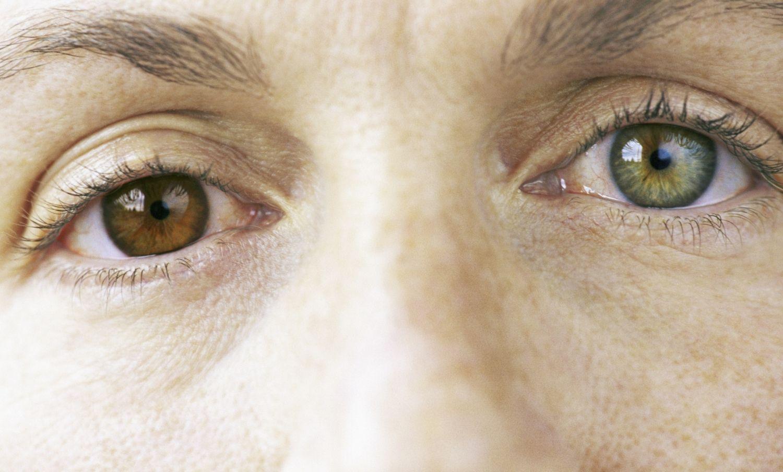 Interesant și explicabil: o persoană cu o culoare diferită a ochilor - Viziune - 2020