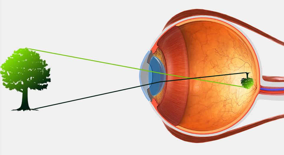 viziunea nervului optic)