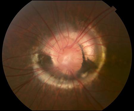 colobom oftalmologic acuitatea vizuală 0 4 câte dioptrii