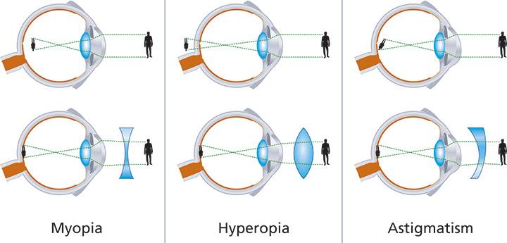 miopia ochiului drept