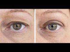exercițiile oculare restabilește vederea